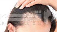 تساقط الشعر أسبابه وعلاجه ووصفات طبيعية مفيدة