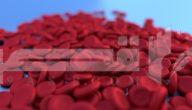 مرض الأنيميا أو فقر الدم  الأسباب والأعراض والعلاج