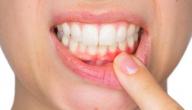 علاج التهابات الأسنان و أسبابها والوقاية منها